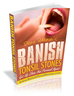 Banish Tonsil Stone'