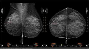 Mammography Visualization'