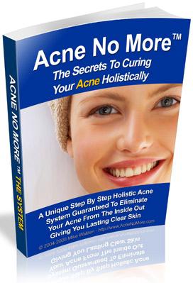 Acne No More'