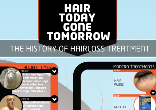 History of Hair Loss Treatments Infographic'