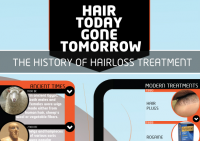 History of Hair Loss Treatments Infographic