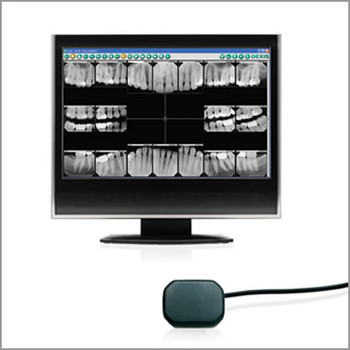 Digital X-rays'
