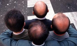 St. Louis Hair Transplant Mentor'