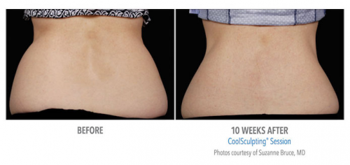 beverly hills coolsculpting'