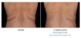 CoolSculpting in Beverly Hills'