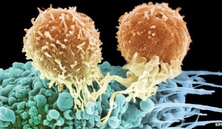 Chimeric Antigen Receptor (CAR) T cell Immunotherapy'