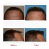 Hair Transplant Surgery Results from Dr. Scott Thompson'