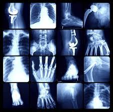 Medical Imaging Informatics Market'