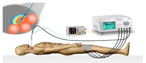 Radiofrequency Ablation Devices Market'