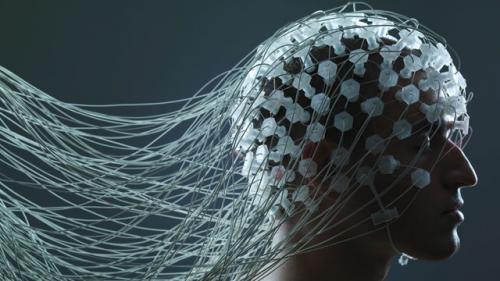 Neuroprosthetics Market'