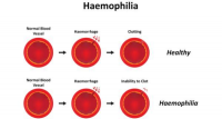 Hemophilia Treatment Market