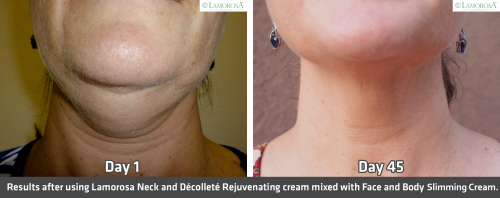 Before and After Neck Slimming'