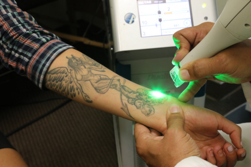 Tattoo Removal Market Expected to Reach $27,317 Million by 2'