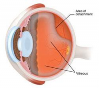 Retinal detachment Market