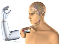 Microelectronic Medical Implants Market