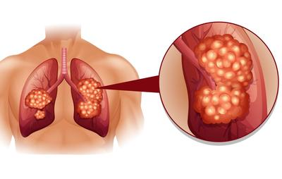 Lung Cancer Market'