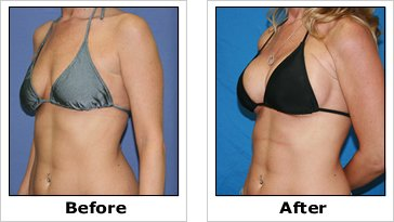 Breast Augmentation'