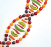 Nutrigenomics Market'