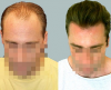 The Cole Hair Transplant Group'
