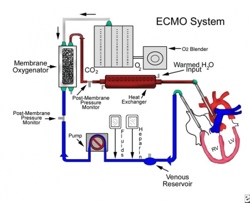 Extracorporeal Membrane Oxygenation System market'
