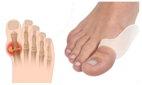 Bunion (Hallux Valgus) Treatment Market