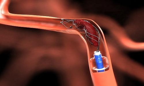 Neurovascular Stents'