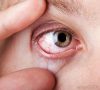 Dry Eye Syndrome Market'
