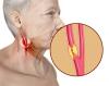 Carotid Artery Disease'