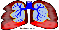 Lung Cancer Market Experiences an Enormous CAGR Growth