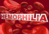 Hemophilia Treatment Market'