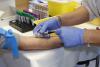 STD Testing in Los Angeles'