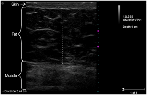 Ultrasound image of abdomen of a patient BEFORE truSculpt&am'