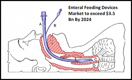 Enteral Feeding Devices Market to exceed $3.5 Bn By 2024'
