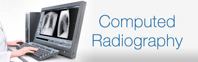 Global Computed Radiography and Digital Radiography Market S'