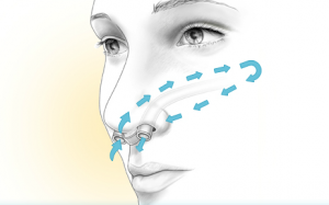 deviated septum surgery'