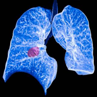 Drugs for Non-small Cell Lung Cancer Market