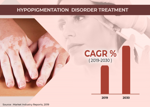 Hypopigmentation Disorders Treatment Market'