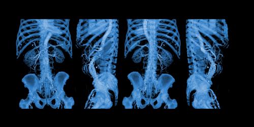 3D Medical Imaging Market'