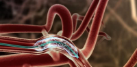Intracranial Stents Market