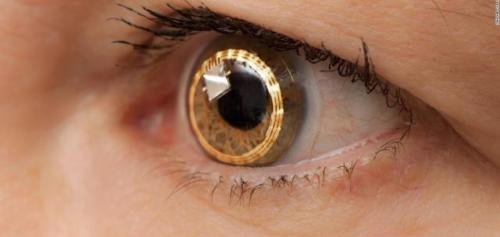 Contact Lenses Market'