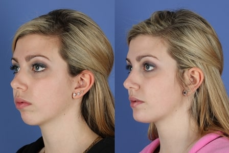 Facial Implants Market'