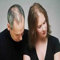 Hair Loss Men and Women Market'