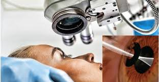Global Opthalmology Drugs and Devices Market S'