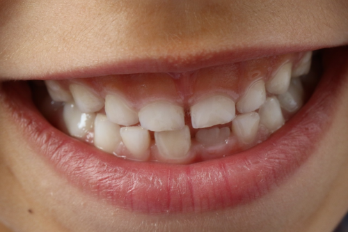 Torrance Orthodontist Is Providing Patients with Quality Ser'