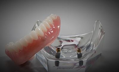 Dentures Sparks'