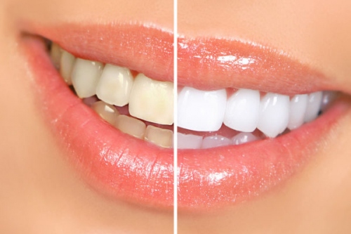 Teeth Whitening Sparks'