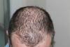 Gentera Reverses the Effects of Hair Loss with PRP and Nutra'