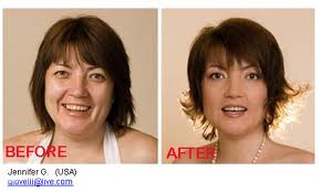 Use Natural Ways to Lose Face Fat Faster'