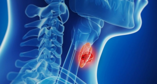 Non-Hodgkin Lymphoma Treatment Market Size Is Projected to'