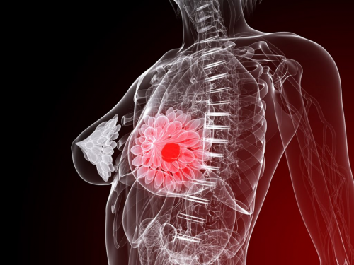 Metastatic Breast Cancer Treatment Market is Expected to Rea'
